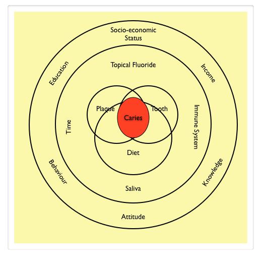 Caries diagram showing high-sugar diet